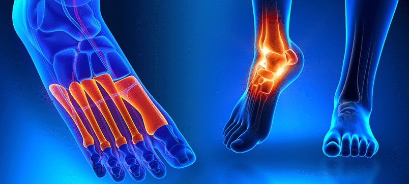 Orthopedic Hospital In Hyderabad
