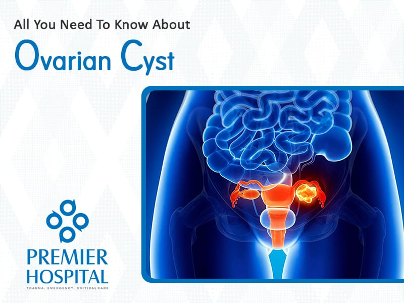 All You Need To Know About Ovarian Cysts