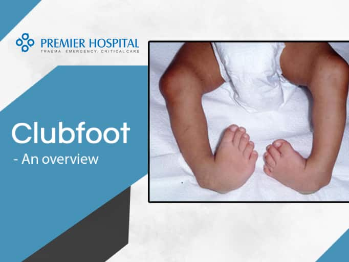 Clubfoot – Causes and Symptoms