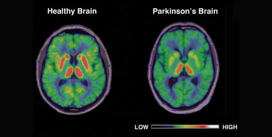 Parkinson's Disease An Overview2