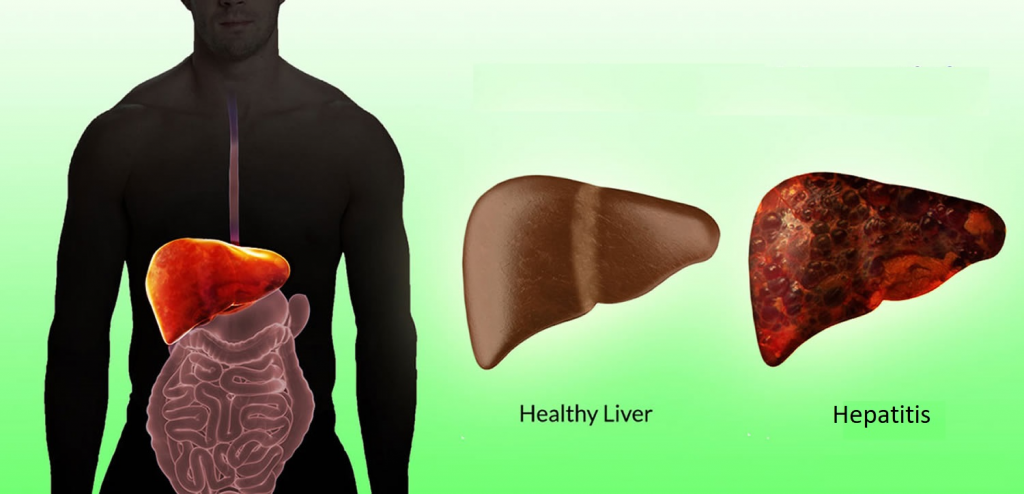 Save Your Liver From Hepatitis2