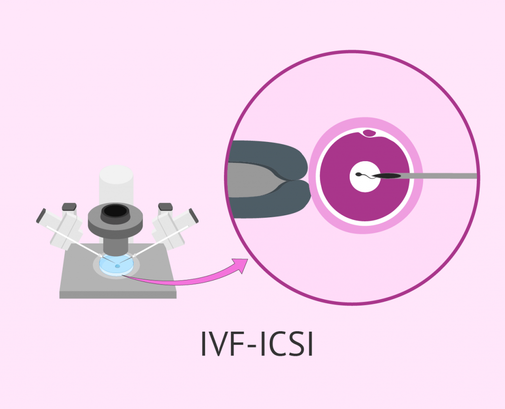 IVF Complete Procedure A Step-By-Step Guide1