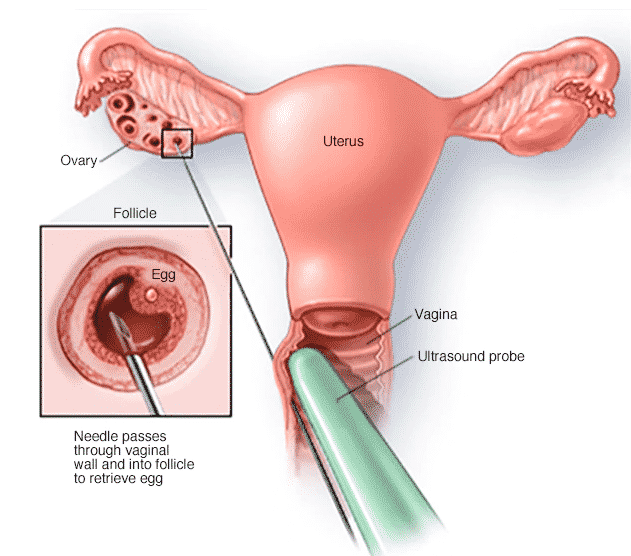 IVF Complete Procedure A Step-By-Step Guide2