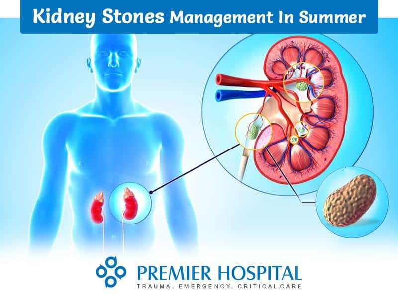 Kidney Stones Management in Summer
