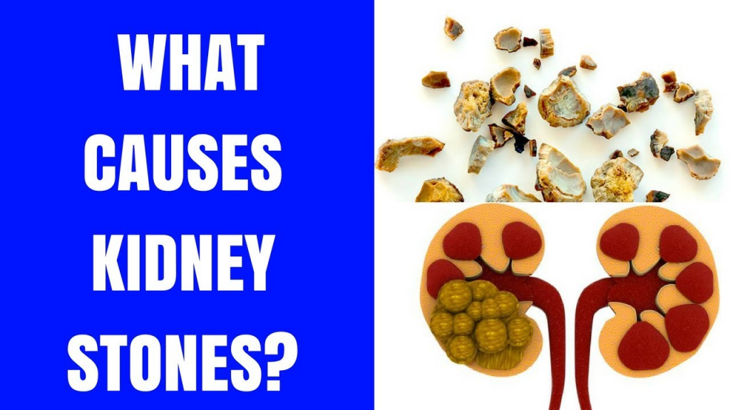 Kidney Stones Management in Summer1