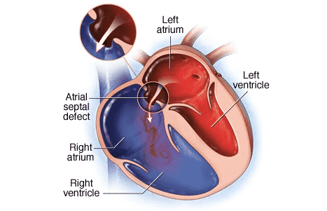 How Dangerous Is To Have A Hole In Your Heart?