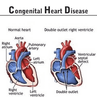 How Do I Know If My Child Has Heart Problems?