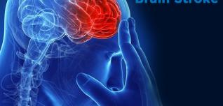 A Complete Guide To Brain Stroke