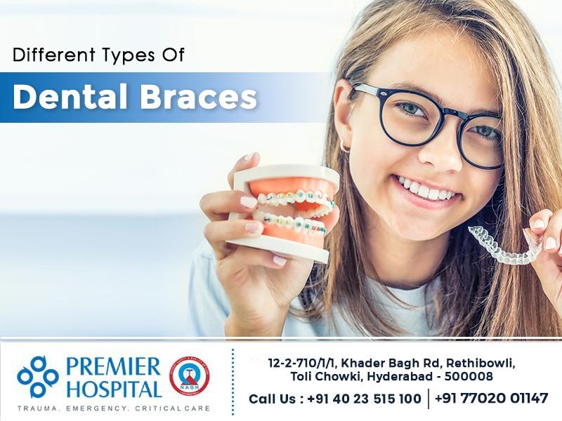 Different Types of Dental Braces